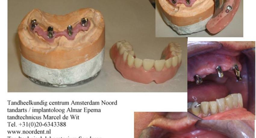 Telescopic denture on 4 Straumann implants