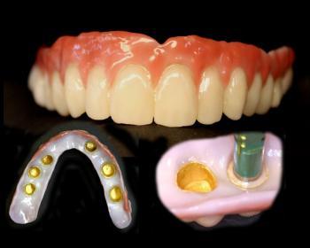 Welcome sonderen dental