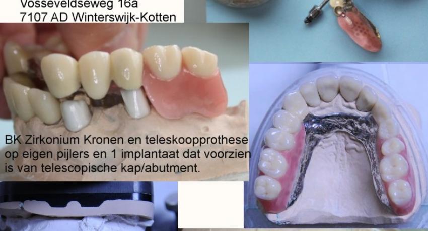 Removable dentures sonderen dental